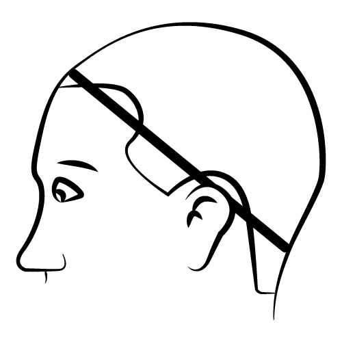 Wig Fitting Diagram.PNG